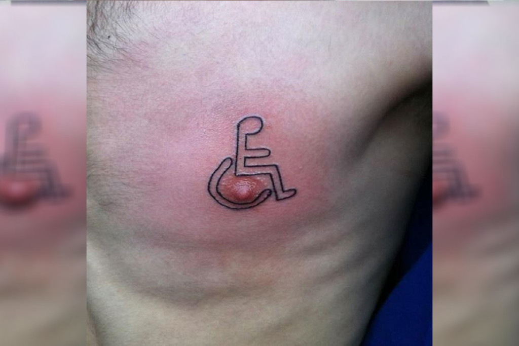 handicap-nipple